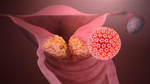 Papilloma virus uomo quali esame. As. Univ. Dr. George Iancu - Hpv uomo esami da fare